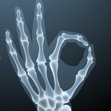 Анатомия кисти. Строение костей кисти.