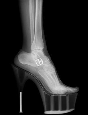 Анатомия стопы. Строение костей стопы-1